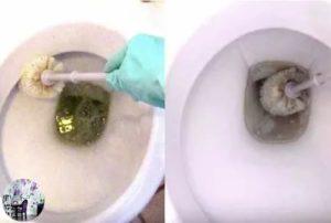 Мочевой камень в унитазе: как образуется, простые и кардинальные методы удаления